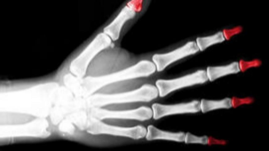 Alpes du Sud : examens radiologiques osseux sur les migrants, deux Parlementaires s'y opposent